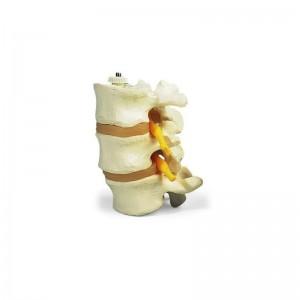 Modello di vertebre lombari a montaggio elastico