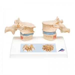 Modello di vertebre con Oteoporosi